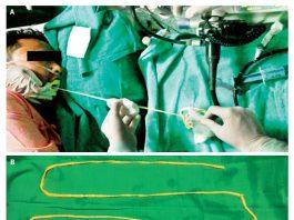 vierme intestin